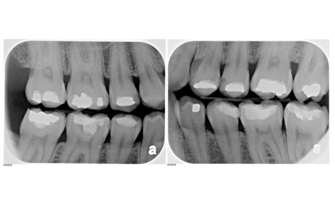 Serene Dental Small X-Ray